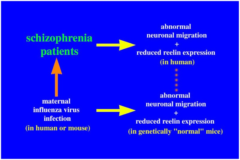 FIGURE 2. An abnormal neuronal migration pattern is hypothetically combined with reduced reelin expression to produce an antibody against the viral antigen, resulting in the development of schizophrenia.