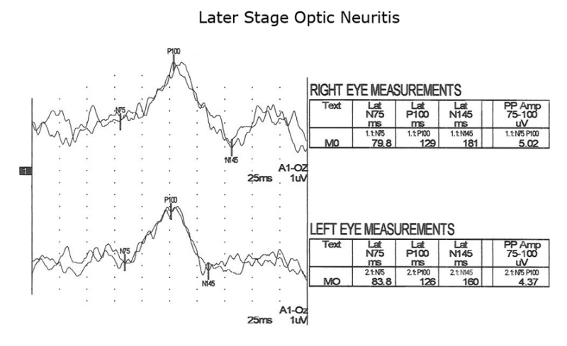 Figure 9: . Pattern reversal VEPs of the MS patient years after initial onset of optic neuritis showing progressively slower P100s.