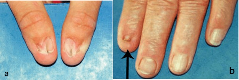 Figure 1 Typical Presentation Of Thumb Nails