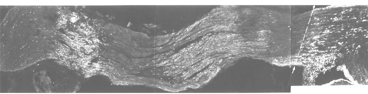 Figure 22. Montage of goldfish optic nerve from just behind the eye (extreme left) to optic tract recess (right), to illustrate the manipulability of the tissue.