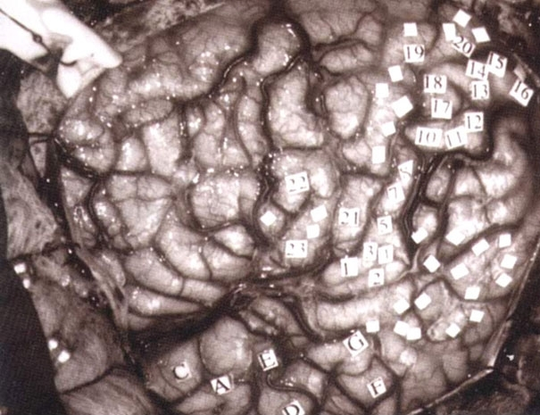Figure 7. Human brain labeled as to cortical areas during neurosurgery.
