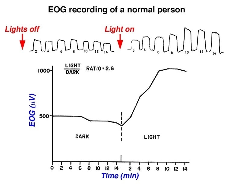 Figure 48. Normal EOG recording.