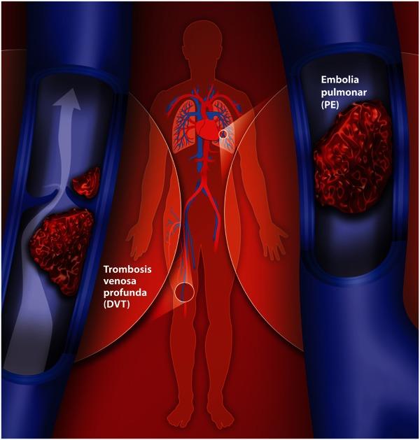 consecuencias de un coagulo en el pulmon