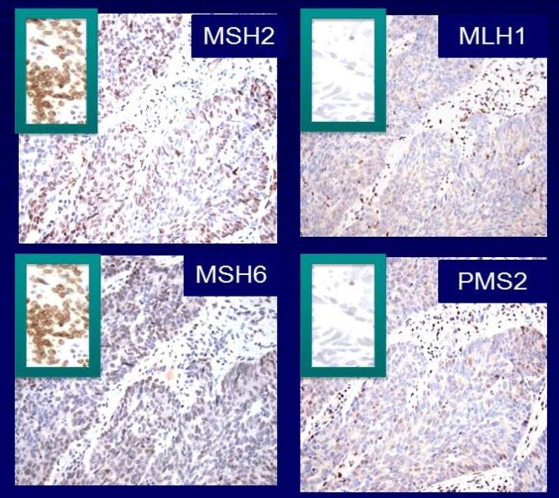 Genetics Of Colorectal Cancer Pdq Pdq Cancer Information Summaries Ncbi Bookshelf