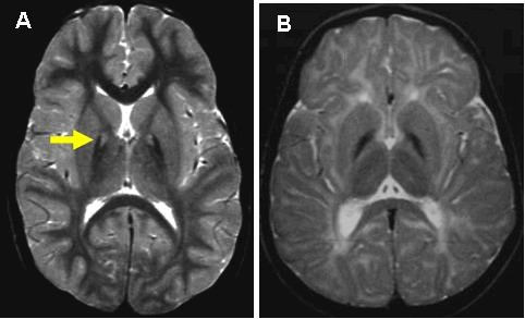 Figure 1. . T2-weighted brain MRI of PKAN (A) and non-PKAN NBIA (B) A.