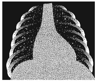 "Appearance of miliary tuberculosis: widespread small patchy infiltrates throughout both lungs: ""snow storm appearance"" (X-ray)."