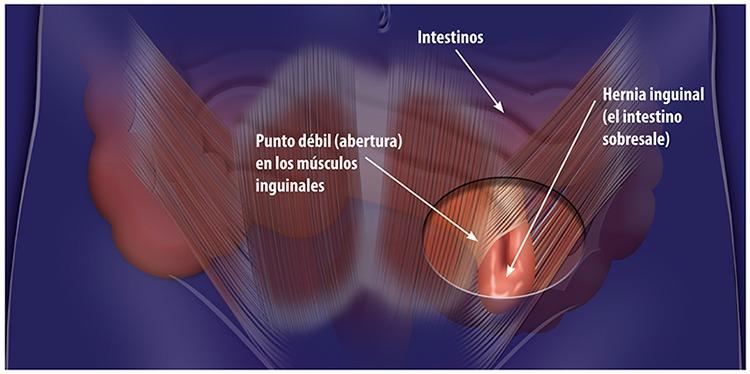 Cirugía Para Hernia Inguinal Las Guías Sumarias De Los Consumidores Ncbi Bookshelf