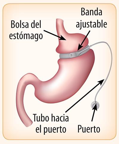 procedimiento de revisión de cirugía de pérdida de peso