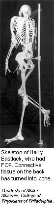 Fibrodysplasia ossificans progressiva - Genes and Disease