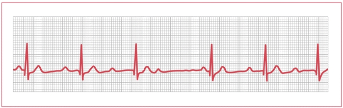 Figure 5. Electrocardiogram of type I second-degree atrioventricular block (Wenckebach).