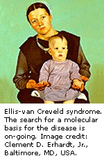 Ellis-van Creveld syndrome - Genes and Disease - NCBI Bookshelf