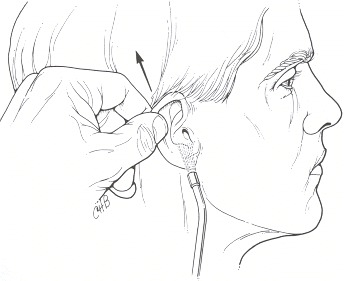 Figure 119.11. Examination of external auditory meatus.