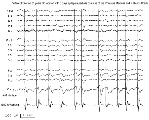 Figure 12.14. Epilepsia partialis continua of 3 days' duration in an elderly woman in a coma.