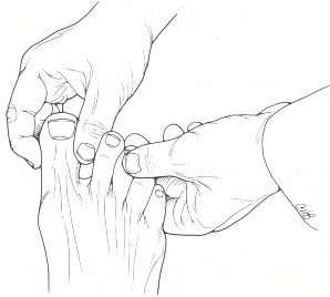 Figure 158.20. Palpation of individual interphalangeal joints of the toes for signs of synovial inflammation and restricted joint range of motion.