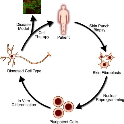 Figure 1, The steps of regenerative medicine  - StemBook