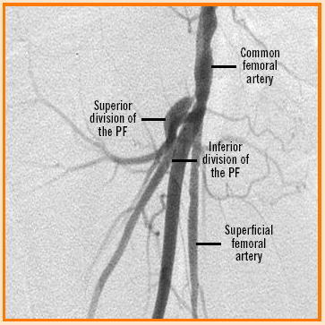 Hip hemiarthroplasty using major lower limb nerve blocks: A preliminary report of a case series