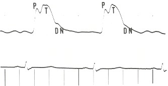 Figure 17.2. A carotid pulse tracing from a patient with severe aortic regurgitation.