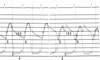Figure 17.3. Panel A shows the simultaneous recording of the left ventricular and aortic pressures (on a scale of 0 to 200 mm Hg) in a patient with severe coronary artery disease.