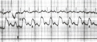 Figure 17.4. This aortic pressure tracing (scale of 0 to 100 mm Hg) was taken from a patient with a severe dilated idiopathic cardiomyopathy.