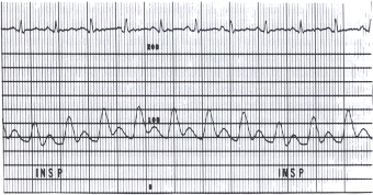 Figure 17.5. This aortic pressure pulse was recorded (scale of 0 to 200 mm Hg) in a patient with pericardial tamponade.