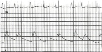 Figure 17.6. This aortic pressure pulse was recorded (scale of 0 to 200 mm Hg) in a patient with severe mitral regurgitation and atrial fibrillation.