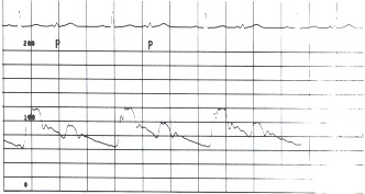 Figure 17.7. This aortic pressure tracing (scale of 0 to 200 mm Hg) was recorded in a patient who had coronary artery disease and a right coronary artery occlusion.