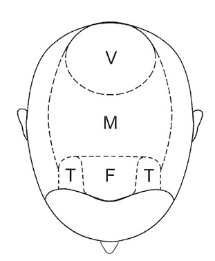 Figure 2. Areas of the scalp.
