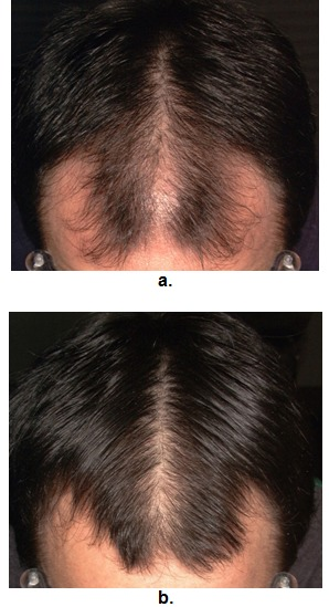 Male Androgenetic Alopecia Endotext Ncbi Bookshelf