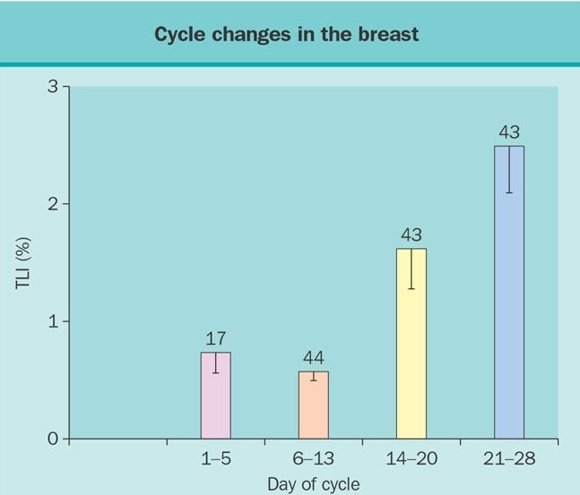 Post menopausal breast nodule