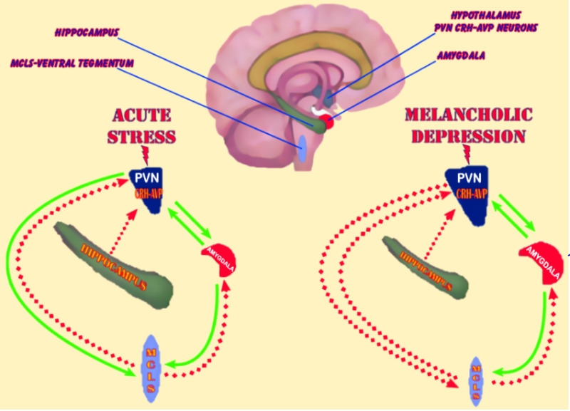 Figure 13. . Schematic representation of the central neurocircuitry and its altered activity implicated in acute stress and melancholic depression (chronic stress system hyperactivation).