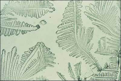 Figure 3. The classic fern pattern of dried cervical mucous.