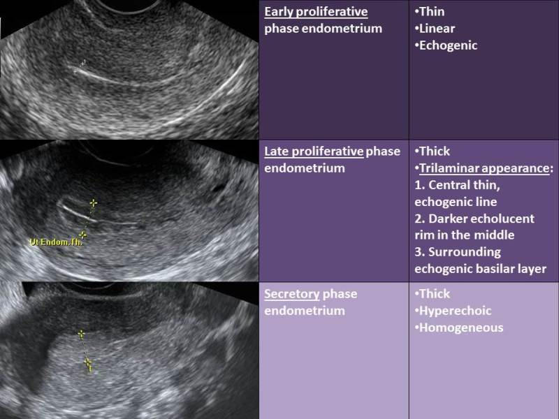 Figure 11. . Characteristic sonographic endometrial changes seen throughout the menstrual cycle.