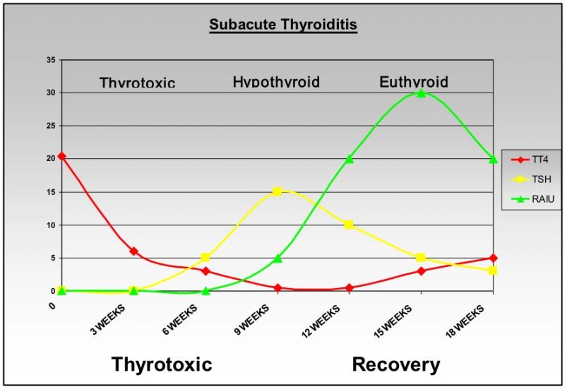 Subacute Thyroiditis - Endotext - NCBI Bookshelf