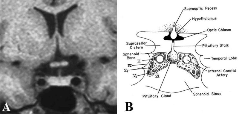 Fig. 7, [(A) MRI and (B) schematic...]. - Endotext - NCBI Bookshelf