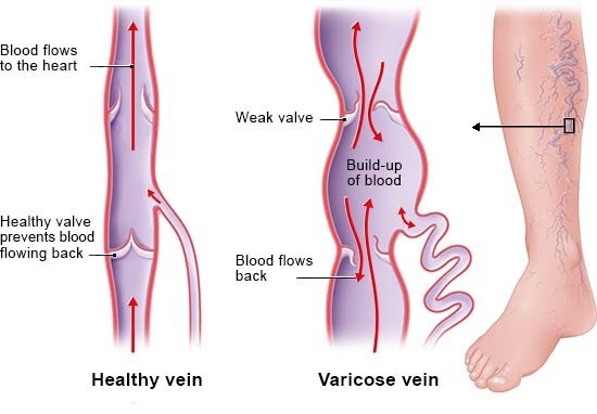 Illustration: Blood flowing backwards in varicose veins in the legs