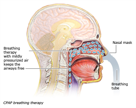 Illustration: CPAP therapy – as described in the article