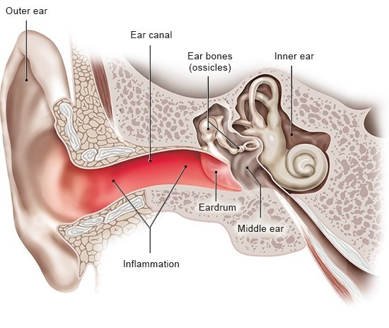 Illustration: Outer ear infection