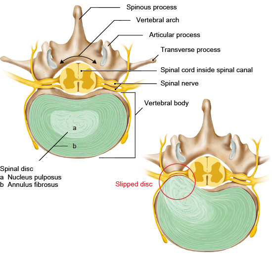 Illustration: Healthy and slipped disc (cross-sectional view of the lumbar spine – from above)