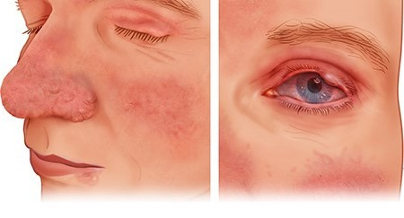 Illustration: Type 3 and type 4 rosacea – as described in the article