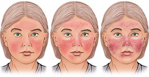 Illustration: Type 1 and type 2 rosacea (varying degrees of severity) – as described in the article