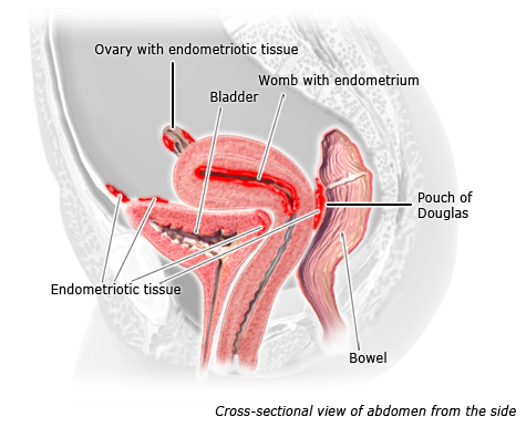 Illustration: Endometrial implants in the abdomen, as described in the article
