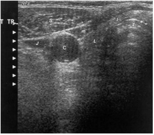 Ultrasonography Of The Thyroid Endotext Ncbi Bookshelf