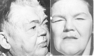 Figure 9-3. (A) The classic torpid facies of severe myxedema in a man.