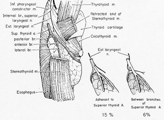 Chapter 21 SURGERY OF THE THYROID - Endotext - NCBI Bookshelf