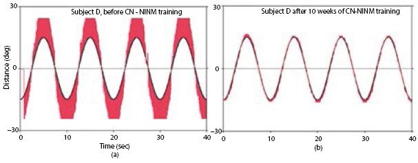 РИСУНОК 44.11. Движение глаз до и после тренировки CN-NINM.