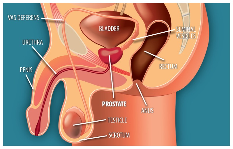 Treating Localized Prostate Cancer Comparative Effectiveness