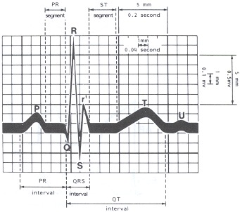 Ecg Diagram Labeled