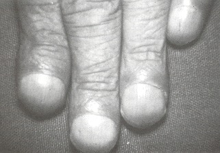Figure 44.1. Clubbing of the fingers of one hand.