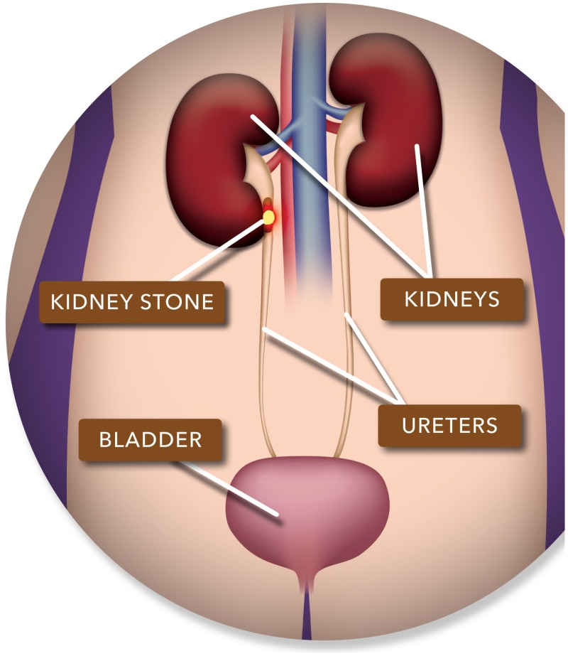Imaging Tests To Check For Kidney Stones In The Emergency Department