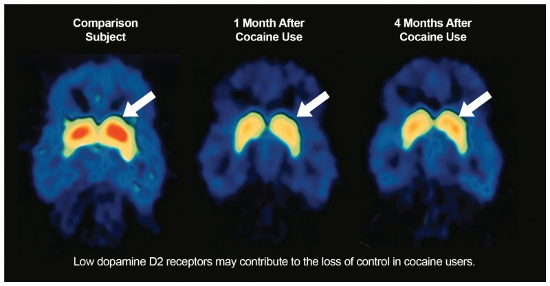 figure 2 8 time related decrease in dopamine released in the brain